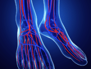 critical limb ischemia represented by 2 feet displaying the veins and arteries with red and blue animation